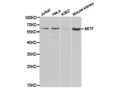 MITF Rabbit Polyclonal Antibody