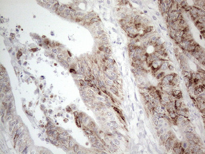 AMACR mouse monoclonal antibody, clone OTI4D12 (formerly 4D12)