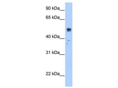 Rabbit Polyclonal Anti-SLC35F5 Antibody