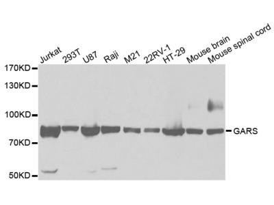 Rabbit anti-GARS Polyclonal Antibody