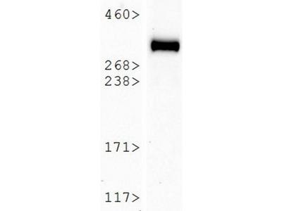 Mouse Monoclonal NG2/MCSP Antibody (LHM 2)