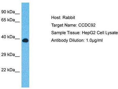 Rabbit Polyclonal Anti-CCDC92 Antibody