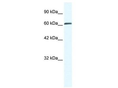 Rabbit Polyclonal Anti-ZNF258 Antibody