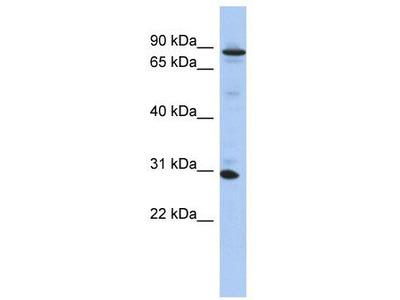Rabbit Polyclonal Anti-ANKRD47 Antibody