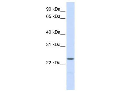 Rabbit Polyclonal Anti-NPM2 Antibody - N-terminal region