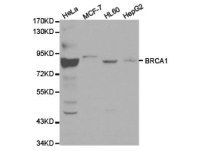 BRCA1 Rabbit Polyclonal Antibody