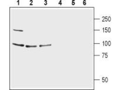 Rabbit Polyclonal Anti-Glutamate Receptor delta1 (GluD1) (extracellular)