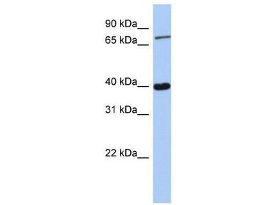 Rabbit Polyclonal Anti-PRDM4 Antibody
