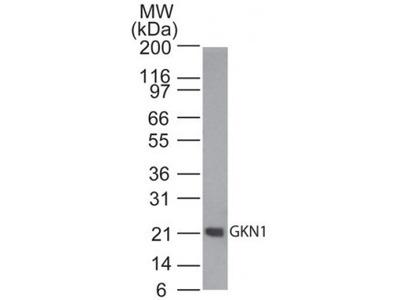 Rabbit Polyclonal Gastrokine 1 Antibody