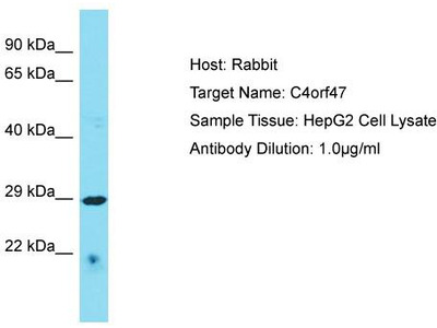 Rabbit Polyclonal Anti-C4orf47 Antibody