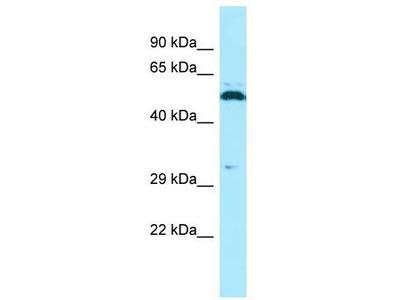 Rabbit Polyclonal Anti-SPAM1 Antibody