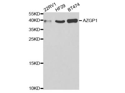 Rabbit anti-AZGP1 Polyclonal Antibody