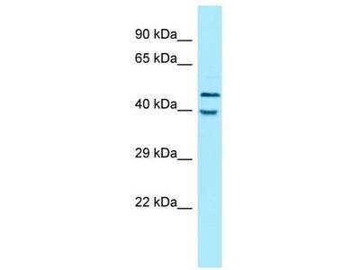 Rabbit Polyclonal Anti-KIR2DL5A Antibody
