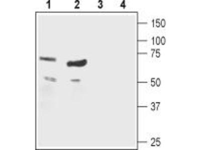 Rabbit Polyclonal Anti-Nicotinic Acetylcholine Receptor beta1 (extracellular)