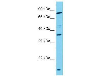 Rabbit Polyclonal Anti-TAS2R3 Antibody
