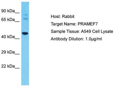 Rabbit Polyclonal Anti-PRAMEF7 Antibody