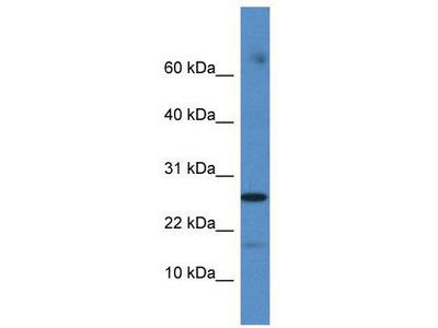 Rabbit Polyclonal Anti-COX20 Antibody