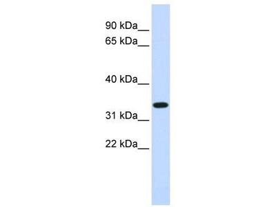 Rabbit Polyclonal Anti-TRIM14 Antibody