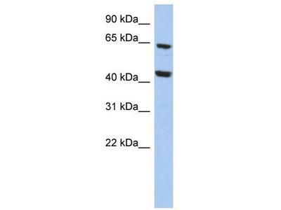 Rabbit Polyclonal Anti-EFHA2 Antibody