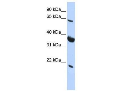 Rabbit Polyclonal Anti-SRPR Antibody
