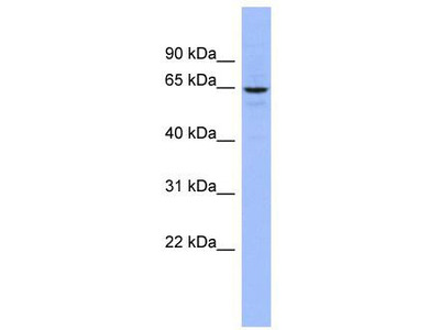Rabbit Polyclonal Anti-SLC34A3 Antibody