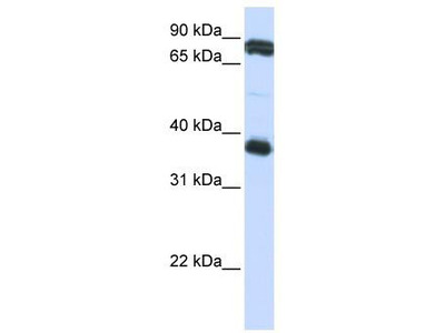 Rabbit Polyclonal Anti-GP6 Antibody