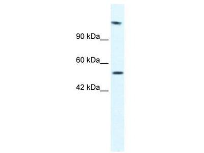 Rabbit Polyclonal Anti-HELB Antibody