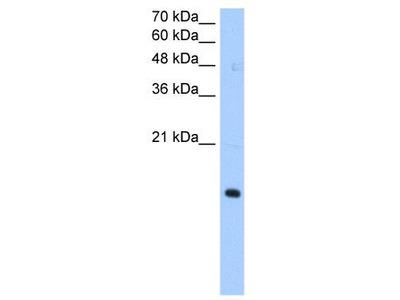 Rabbit Polyclonal Anti-PILRA Antibody