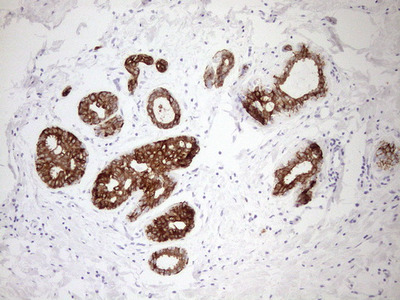 pan Cytokeratin (pan CK) mouse monoclonal antibody, clone AE1+AE3
