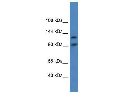 Rabbit Polyclonal Anti-LONP2 Antibody