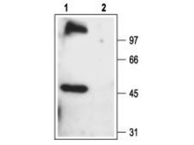 Rabbit Polyclonal Anti-TRPC6