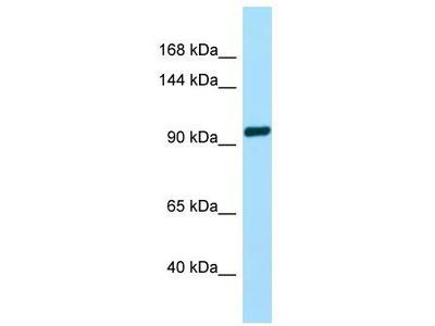 Rabbit Polyclonal Anti-TAS1R2 Antibody