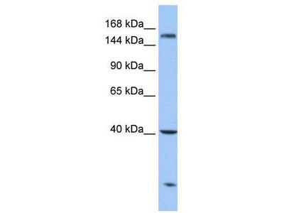 Rabbit Polyclonal Anti-CPD Antibody
