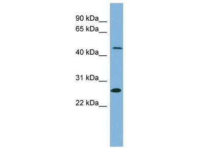 Rabbit Polyclonal Anti-UPB1 Antibody