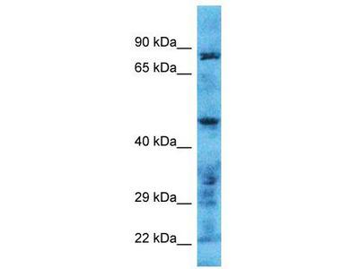Rabbit Polyclonal Anti-TMPRSS11B Antibody