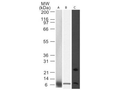 Mouse Monoclonal Noxa Antibody (114C307.1)