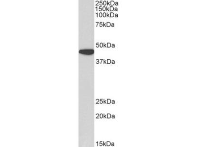 Goat Anti-AMACR (aa312-326) Polyclonal Antibody
