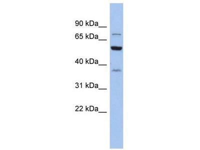 Rabbit Polyclonal Anti-GARS Antibody - middle region