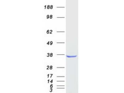 AKR1D1 (NM_005989) Human Recombinant Protein