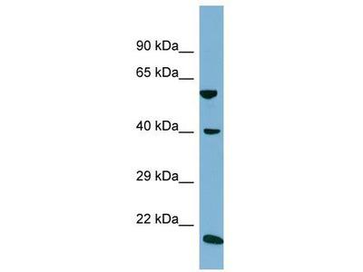 Rabbit Polyclonal Anti-SLC2A10 Antibody