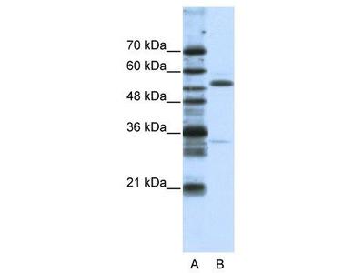 Rabbit Polyclonal Anti-ZNF655 Antibody