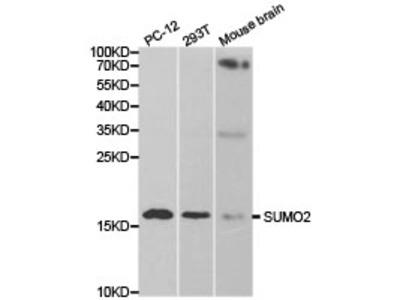 SUMO2 Rabbit Polyclonal Antibody