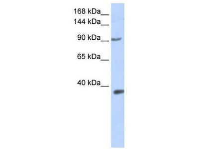 Rabbit Polyclonal Anti-EPAS1 Antibody