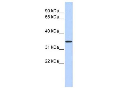 Rabbit Polyclonal Anti-CCDC90A Antibody