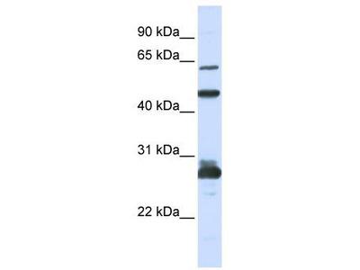 Rabbit Polyclonal Anti-PES1 Antibody