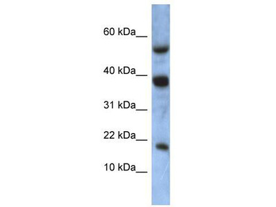 Rabbit polyclonal Anti-ATXN7L1 Antibody