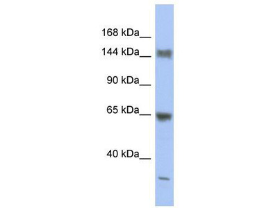 Rabbit Polyclonal Anti-ATXN2 Antibody