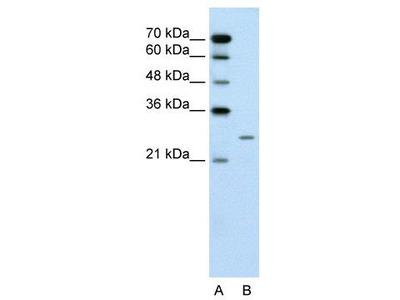 Rabbit Polyclonal Anti-PLUNC Antibody