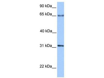 Rabbit Polyclonal Anti-ZNF394 Antibody