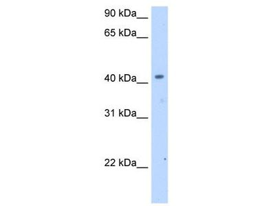 Rabbit Polyclonal Anti-SLC25A24 Antibody